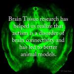 Ways Brain Tissue Research Helps Us Understand ASD